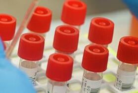 Оперативная сводка по коронавирусу в Кузбассе