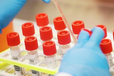 Еще на одной территории Кузбасса выявлен зараженный коронавирусной инфекцией