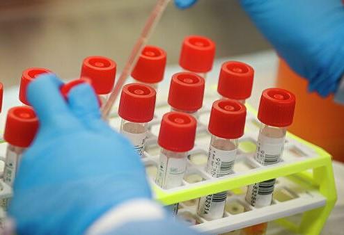 В Кузбассе выявлено 20 новых случаев заражения коронавирусной инфекцией